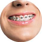 Ortodonzia dell'adulto e pre-protesi