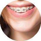 Ortodonzia dell'adolescente