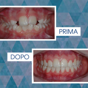 Intercettiva +Ortodonzia fissa (fase 1) 1 anno - Standby - (fase 2) 1 anno