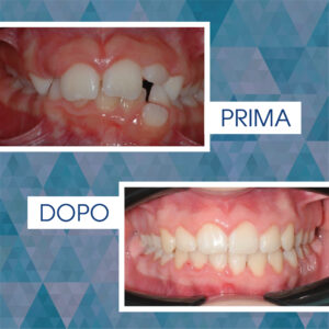 Intercettiva + Damon System